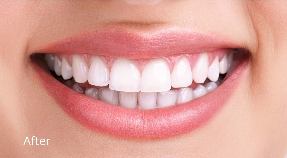 teeth whitening services philadelphia best dentists philadelphia near redlion road bustleton road