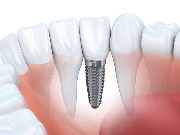 dental implants nusmile dental best dentists philadelphia